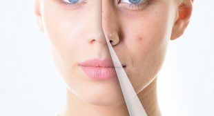 Acne treatment in mississauga canada – Skin Artist Laser Clinic